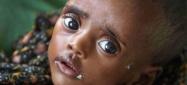 Κάθε μέρα 815 εκατομμύρια άνθρωποι στον κόσμο πεινάνε