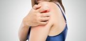 Η ομαλιζουμάμπη συμπληρωματική θεραπεία για την αντιμετώπιση της χρόνιας αυθόρμητης κνίδωσης