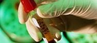 Πρωτοποριακή θεραπεία για την ηπατίτιδα
