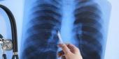Νέα θεραπευτική επιλογή για ασθενείς με μεταστατικό μη μικροκυτταρικό καρκίνο του πνεύμονα