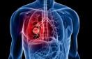 Θεραπεία πρώτης γραμμής αντί χημειοθεραπείας στον καρκίνο του πνεύμονα