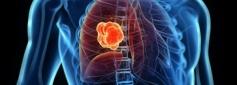 Συνδυαστική θεραπεία για την αντιμετώπιση του μη μικροκυτταρικού καρκίνου του πνεύμονα